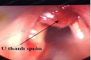 Cắt u thanh quản cứu bệnh nhân bị khó thở sau hơn 1 năm