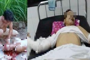 Hà Nam: Điều tra, truy bắt nhóm côn đồ chém người trọng thương