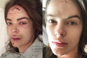 Người mẫu áo tắm đăng ảnh mặt bầm dập do tai nạn