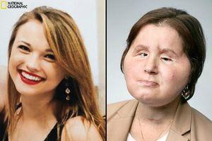 Hành trình tìm lại khuôn mặt của cô gái từng cố tự sát