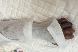 Đắp thuốc lá chữa rắn cắn, bé trai bị hoại tử nặng bàn tay trái