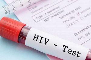 Tỷ lệ nhiễm HIV cao gấp 2,5 lần, Bộ Y tế yêu cầu Phú Thọ mở rộng vùng xét nghiệm HIV