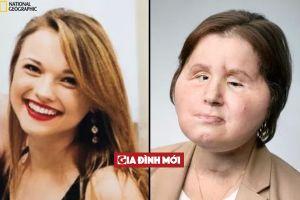 'Họa bì' phiên bản đời thật: Tìm lại khuôn mặt của cô gái xinh đẹp tự bắn vào đầu tự sát