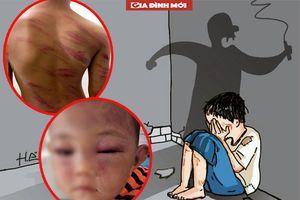 Những vụ con riêng bị cha dượng, mẹ kế 'xuống tay' bạo hành khiến dư luận phẫn nộ