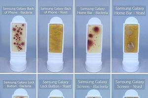 Điện thoại di động có lượng vi khuẩn gấp 10 lần bồn cầu vệ sinh