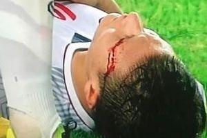 Máu chảy ròng ròng trên mắt, Quang Hải U23 an ủi người hâm mộ siêu lầy: 'Tôi vẫn khỏe và đẹp trai nhé'