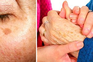 11 cách trị đốm đen trên da mặt đơn giản không ngờ