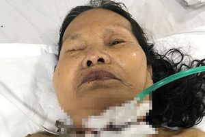 Phụ cháu mổ gà, bà nội trượt chân bị dao đâm xuyên cổ