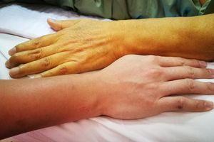 20 dấu hiệu cảnh báo từ gan