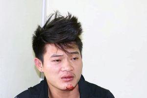 Hà Giang: Nam thanh niên bị đâm tử vong trong lúc nhậu đêm