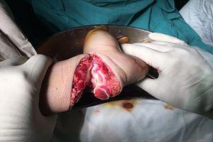 Bệnh viện huyện mổ xuyên đêm cứu nam thanh niên thoát khỏi cụt tay
