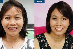 Hậu quả mất răng vĩnh viễn của việc mài răng bọc sứ sai cách