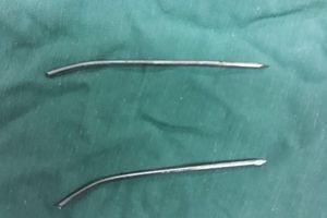 Bị đinh nẹp xương đâm thủng thực quản khí quản sau 2 năm 'bỏ quên'