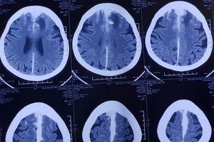 Cụ già hết liệt chân nhờ phẫu thuật não