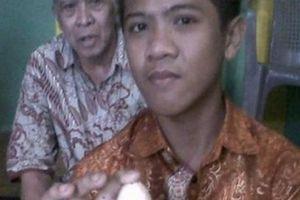 Sự thật bí ẩn gây sốc cậu bé biết đẻ trứng ở Indonesia