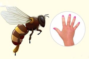 Mẹo 'nhận dạng' đơn giản vết cắn do côn trùng