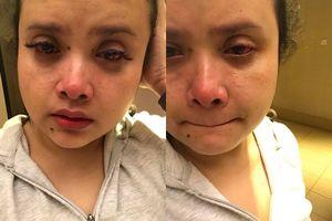 Nối mi giả kém chất lượng, cô gái khóc ròng vì nhận cái kết đắng