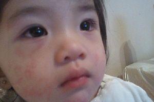Trẻ bị dị ứng thời tiết: Biểu hiện và cách điều trị hiệu quả