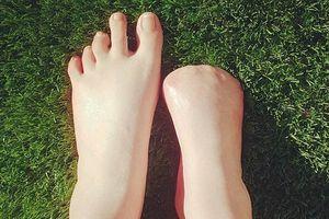 Cô gái trẻ 'bay' mất 5 ngón chân sau khi đi spa cá rỉa