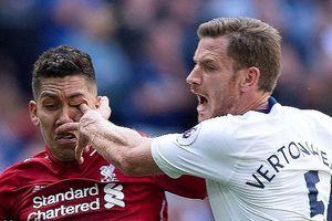 Cận cảnh sao Liverpool bị móc mắt kinh dị