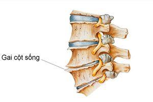 5 bài thuốc trị gai cột sống lưng nhờ cách chữa cộng hưởng kiểu mới
