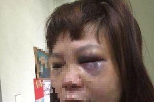 Ghen tuông, chồng tra tấn chém rách đùi vợ