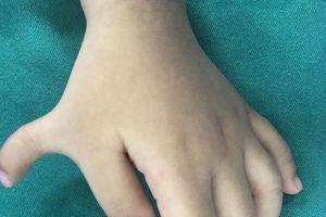 Trẻ bị dị tật 6 ngón tay, cha mẹ phải làm gì?