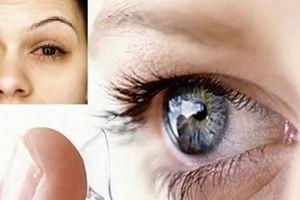 Cảnh báo: Đeo kính áp tròng đi ngủ thường xuyên có thể gây mù lòa vĩnh viễn