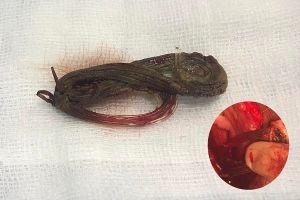 Dây cước 6cm nằm bên trong niệu đạo 11 năm