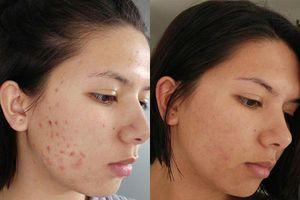Dùng mỹ phẩm, thuốc đặc trị lẫn liệu pháp tự nhiên mà da vẫn đầy khuyết điểm, hãy thử áp dụng 'thần dược' này