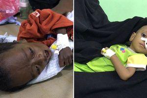 Mỹ cần phải điều tra Ngoại trưởng Pompeo hậu thuẫn cuộc chiến tại Yemen