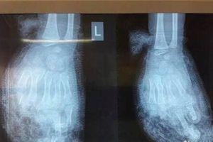 Điện thoại phát nổ, bé 7 tuổi bị nát bàn tay