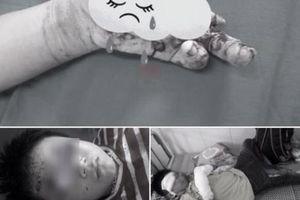 Bé trai 7 tuổi Nghệ An nát bàn tay vì ĐTDĐ nổ: Lời cảnh tỉnh phụ huynh