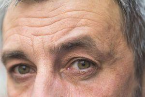Nếp nhăn gương mặt nói gì về sức khỏe của bạn?