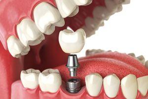 Quá trình trồng răng giả thực hiện như thế nào?