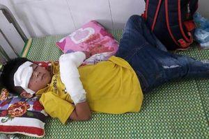 Chơi điện thoại lúc sạc pin, bé trai 7 tuổi bị dập nát hai bàn tay, tổn thương mắt