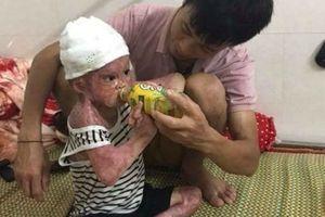 9 tháng vật lộn giành sự sống của cậu bé bị bỏng nặng trong vụ cháy kinh hoàng tại nhà
