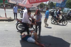 Dân đội nắng che ô cho thanh niên gặp TNGT gãy chân