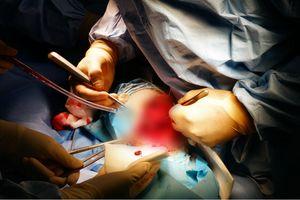 Ca phẫu thuật nối chân gãy cho bệnh nhân 'không thể truyền máu'