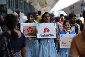 Thế giới tuyên chiến với bệnh lao - 'đại dịch lây lan nguy hiểm'