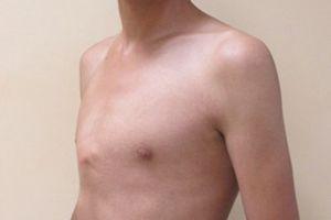 Hy vọng mới cho trẻ bị bệnh lý lồi ngực