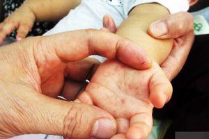 Bệnh tay chân miệng ở TPHCM sẽ diễn biến phức tạp