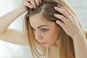 Những lý do khiến tóc rụng sẽ làm bạn bất ngờ