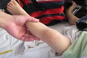Dịch bệnh tay chân miệng gia tăng trên địa bàn cả nước