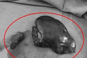 Chàng trai bị vỡ gan, hơn 1 lít máu tràn trong ổ bụng khi gặp tai nạn giao thông