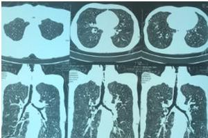 Cứu sống bệnh nhân suy hô hấp nhờ nội soi phế quản