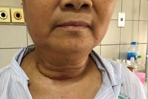 Khối u khổng lồ nằm trong lồng ngực suốt 10 năm