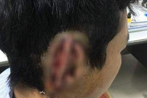 Nóng trên mạng xã hội: Hoang mang chuyện nam sinh bị bạn cắn đứt tai