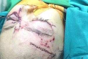 Bé gái 31 tháng tuổi thương tích nặng vì bị chó nhà tấn công
