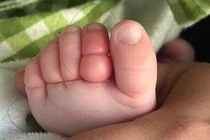 Bé trai 10 tuần tuổi suýt cắt bỏ 4 ngón chân vì sợi tóc rụng của mẹ